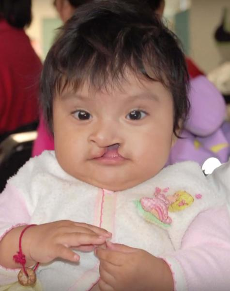 Baby with a cleft lip